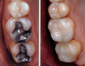 Зубную пломбу своими руками