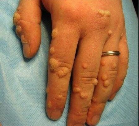 Сколько заживает шрам после удаления родинки