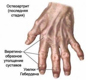 Боли в суставе пальца руки при занятиях спортом хрустят суставы