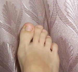 На ноге нарывает ноготь