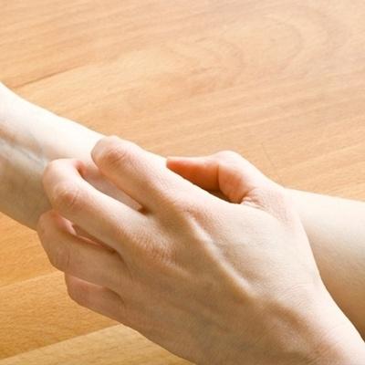 Симптомы и диагностика крапивницы