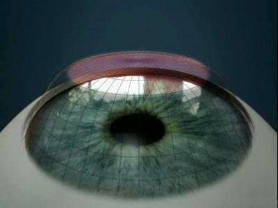 Как можно восстановить зрение близорукость