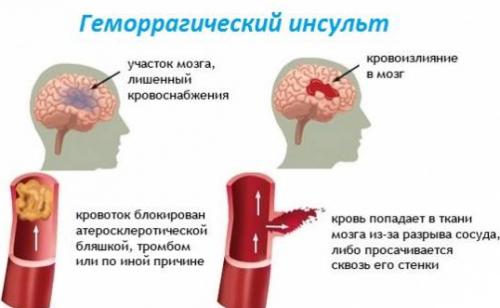 Инсульт методика борбото