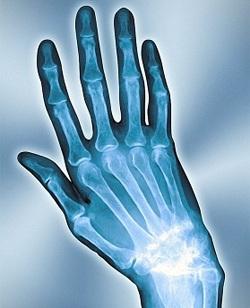 Артроз пальцев рук симптомы и лечение народными средствами